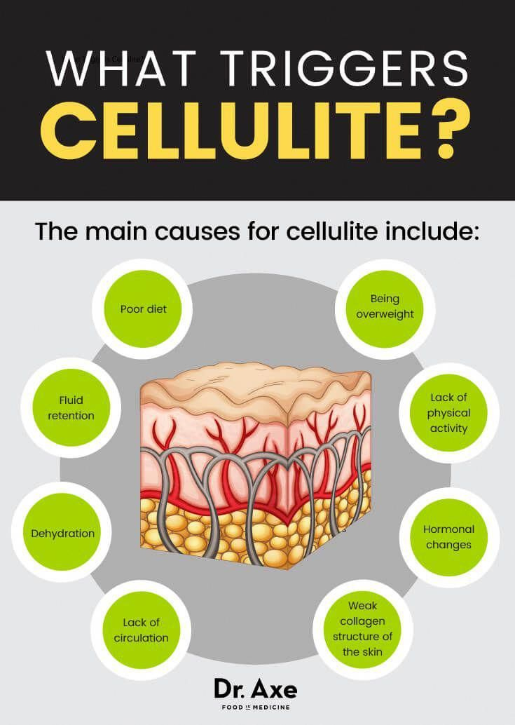 Pin on cellulite removal from body