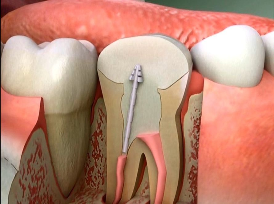 in a pulpotomy your dentist removes the damaged pulp from the crown portion of your tooth but leaves the pulp thats in the root intact