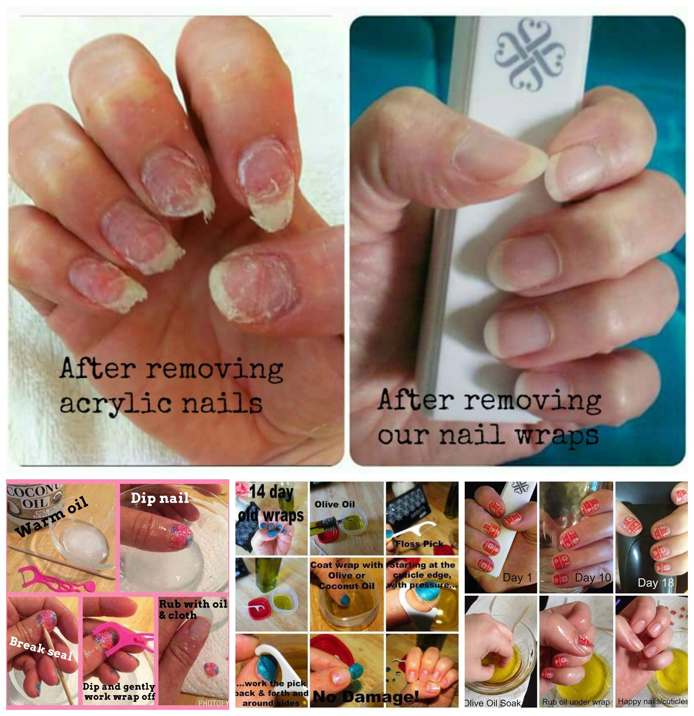 How Many Of You Ladies Have Had To Wait Months For Your Damaged Nails To Grow Out From Having Acrylic Nails F Remove Acrylic Nails Dipped Nails Jamberry Nails