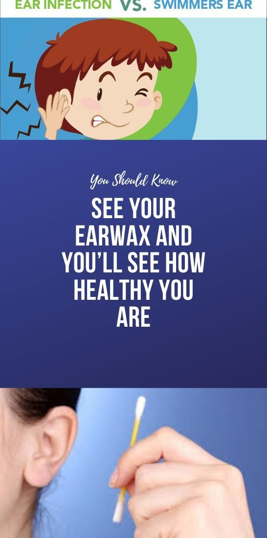 See Your Earwax And Youll See How Healthy You Are