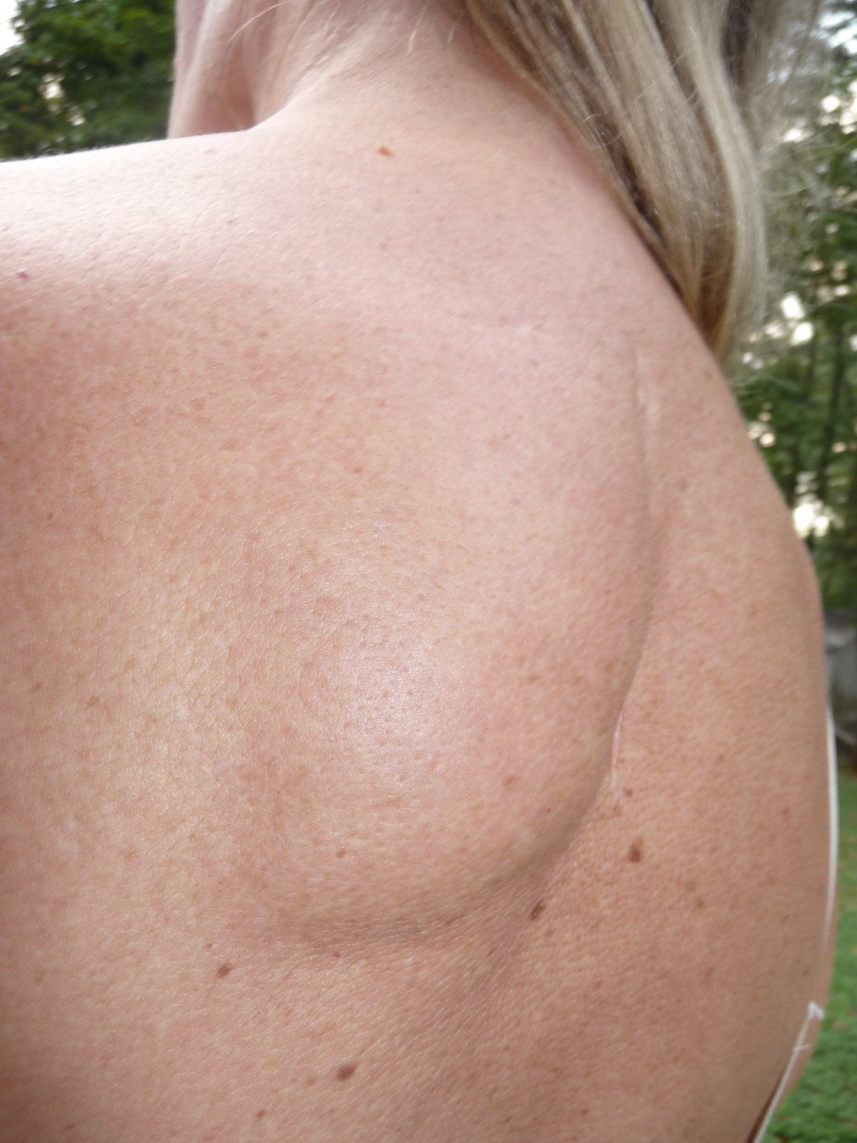 Lipoma on the back. How to get rid 19