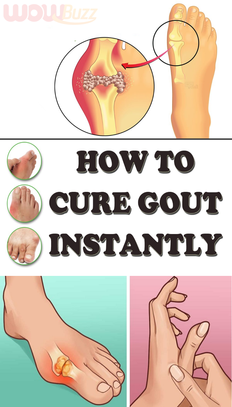 Natural Ways To Treat Gout How To Cure Gout Gout Gout Remedies