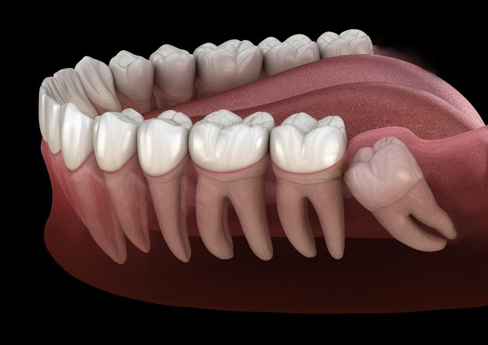 Not Everyone Has The Same Amount Of Wisdom Teeth Most Adults Will Have Four One In Each Q Wisdom Teeth Wisdom Tooth Extraction Wisdom Teeth Removal Recovery