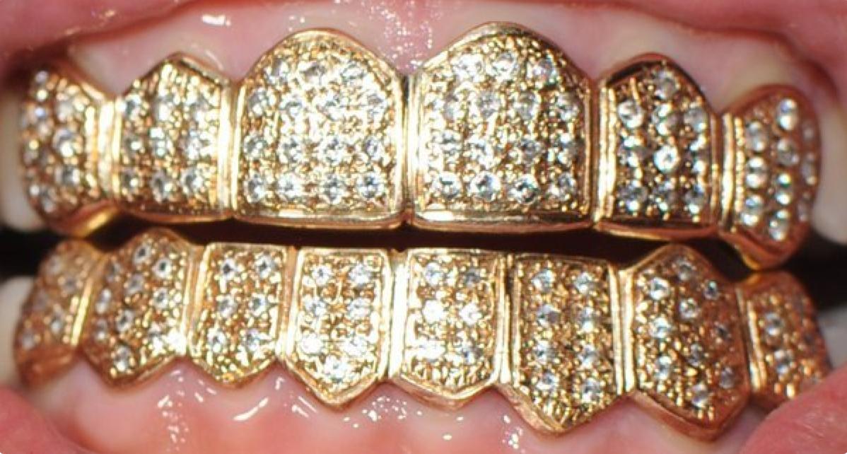 Gold Diamonds Grillz Diamond Grillz Trendy Jewelry