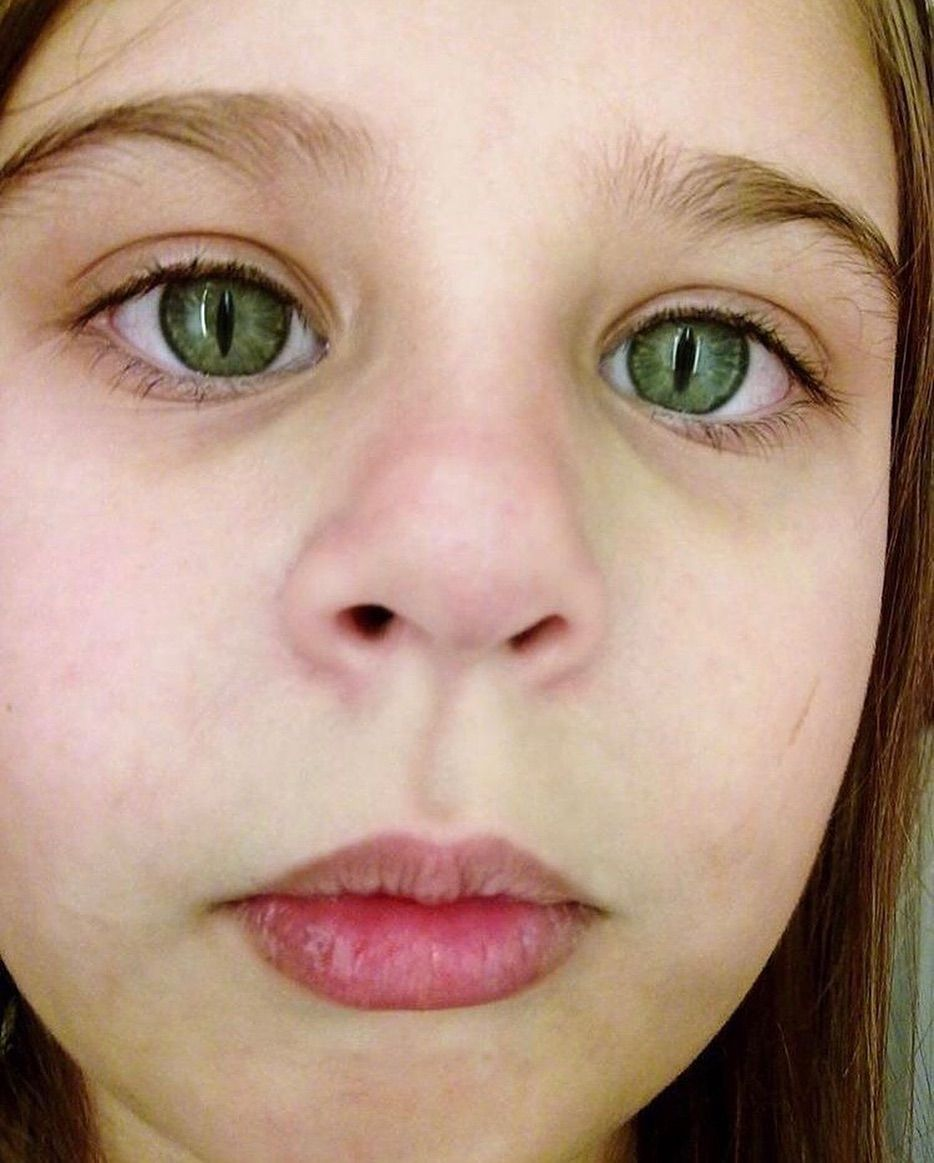 Cat eye syndrome (CES), or (SchmidFraccaro syndrome) is a
