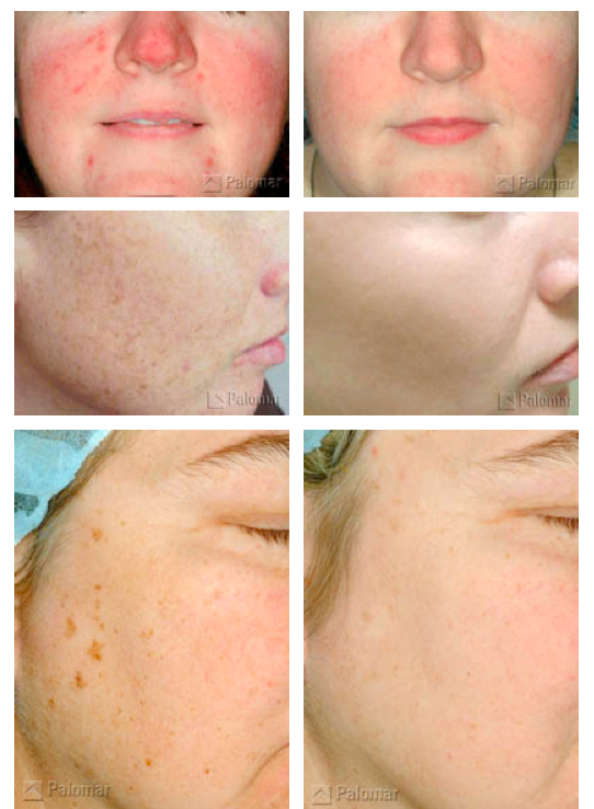 Before and After of a photofacial   WOW! | Palomar Laser Treatments
