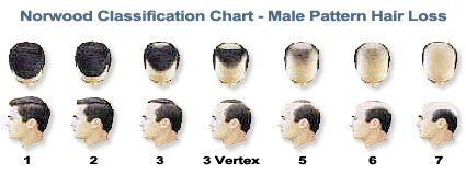 Http Www Curemydisorder Com Links Howtoregrowhair Norwood Classification Chart Male Pattern Hair Loss Male Pattern Hair Loss Hair Loss Causes Hair Loss Men
