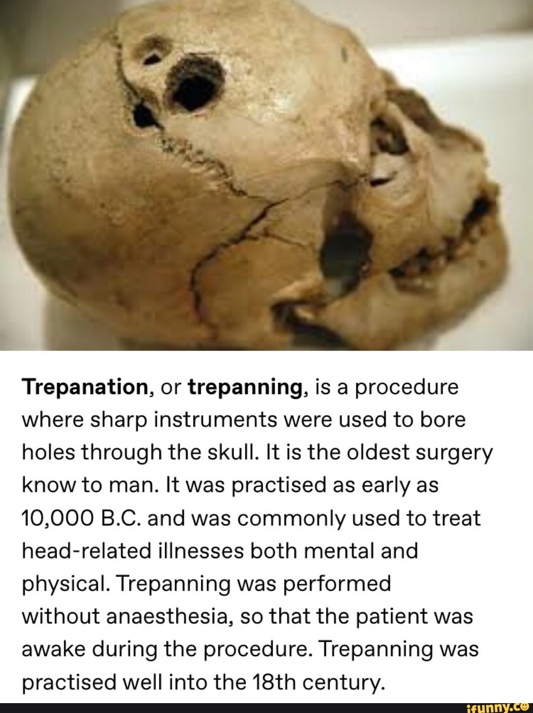 Trepanation Or Trepanning Is A Procedure Where Sharp Instruments Were Used To Bore Holes Through The Skull It Is The Oldest Surgery Know To Man It Was Pract Surgery Old Things