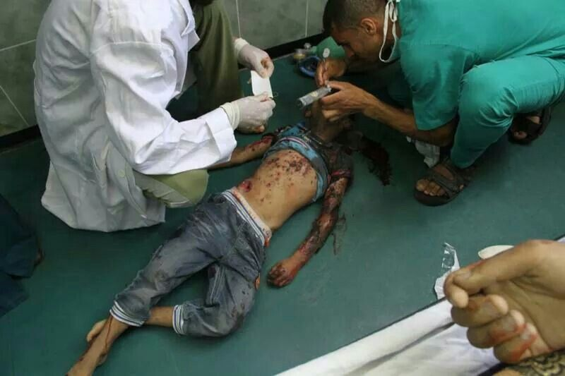 assacre at #Rafah in #Gaza. Innocent civilians are being shelled and murdered.