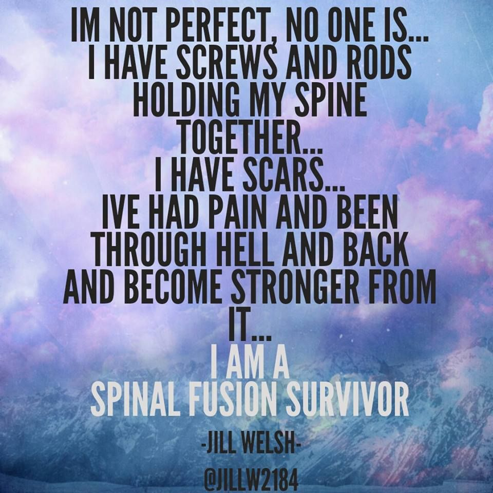 Still Waiting On The Become Stronger From It Part Spinal Fusion Spinal Fusion Surgery Scoliosis