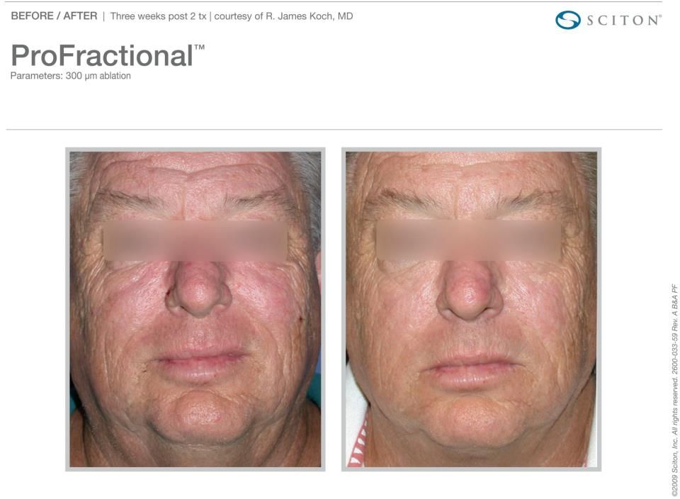 Real Results From Sciton S Laser Resurfacing Treatment Profractional Therapy Https Www Facebook Com Media S Laser Skin Treatment Laser Skin Laser Treatment