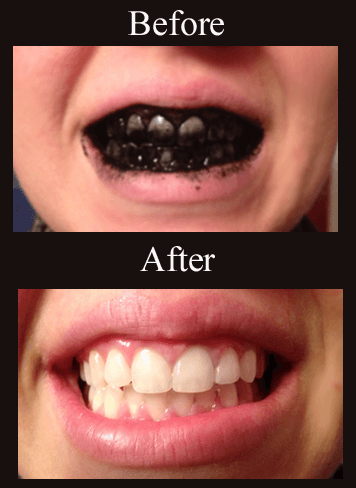 How To Whiten Teeth Naturally With Charcoal Alternative Treatment