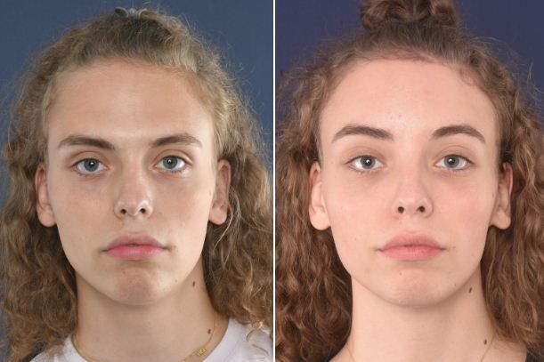 facial-feminisation-surgery