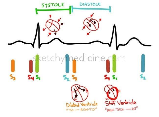 Cardio   Sketchy Medicine   Medical   Heart sounds, Med surg nursing