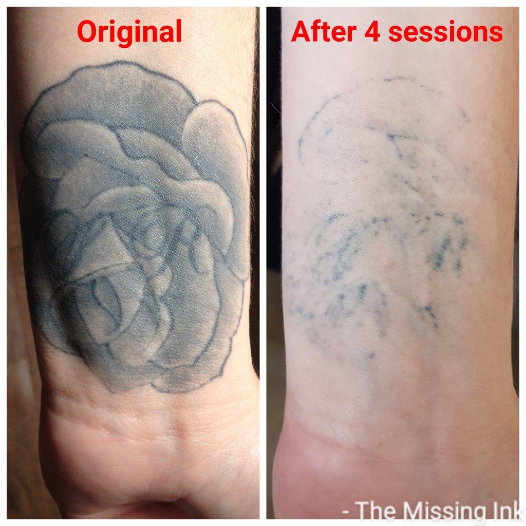 Dark Cover Up Laser Tattoo Inner Wrist Tattoos Tattoo Removal