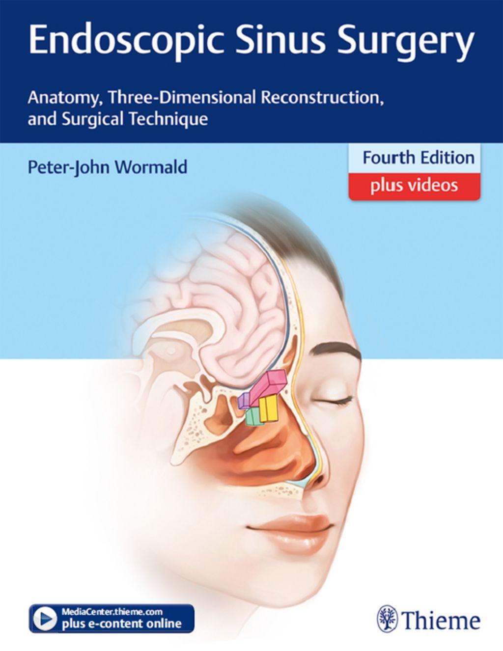 Printable Endoscopy: Endoscopic Sinus Surgery (eBook)