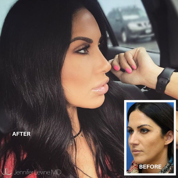 Rhinoplasty Cost Before And After Dr Jennifer Levine Rhinoplasty Cost Nose Surgery Rhinoplasty Rhinoplasty Nose Jobs