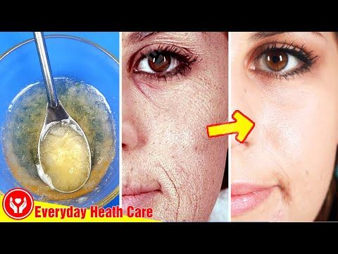 Before Sleeping Apply This On Face Get Rid Of Wrinkles Naturally And Make Your Skin Yo Skin Care Wrinkles Face Cream For Wrinkles Home Remedies For Wrinkles
