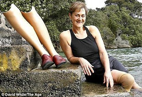 The Wonderful Story Of Nadya Vessey The Double Amputee Woman That