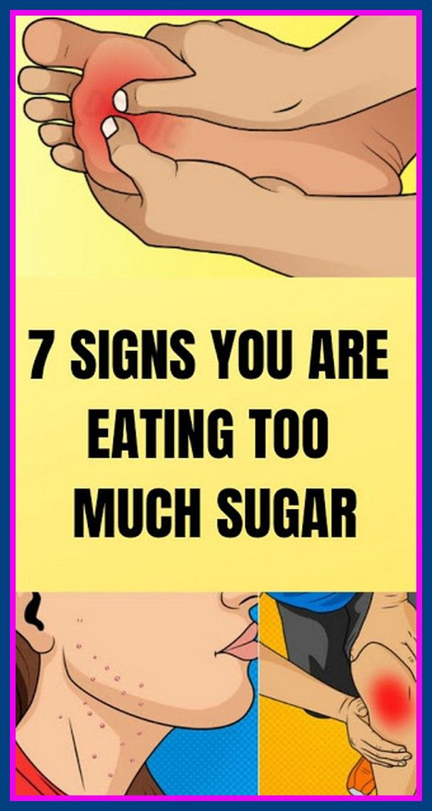 7 Signs You Are Eating Too Much Sugar!