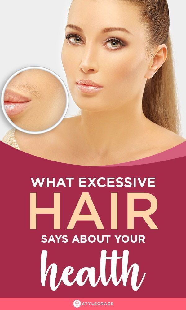#Body #Diffe #excessive #Hair #Health #Parts #Body #Diffe #excessive #Hair #Health #Parts