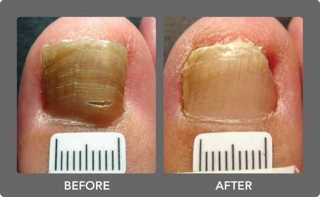 Home Remedies to Treat Nail Fungus PERMANENTLY. -