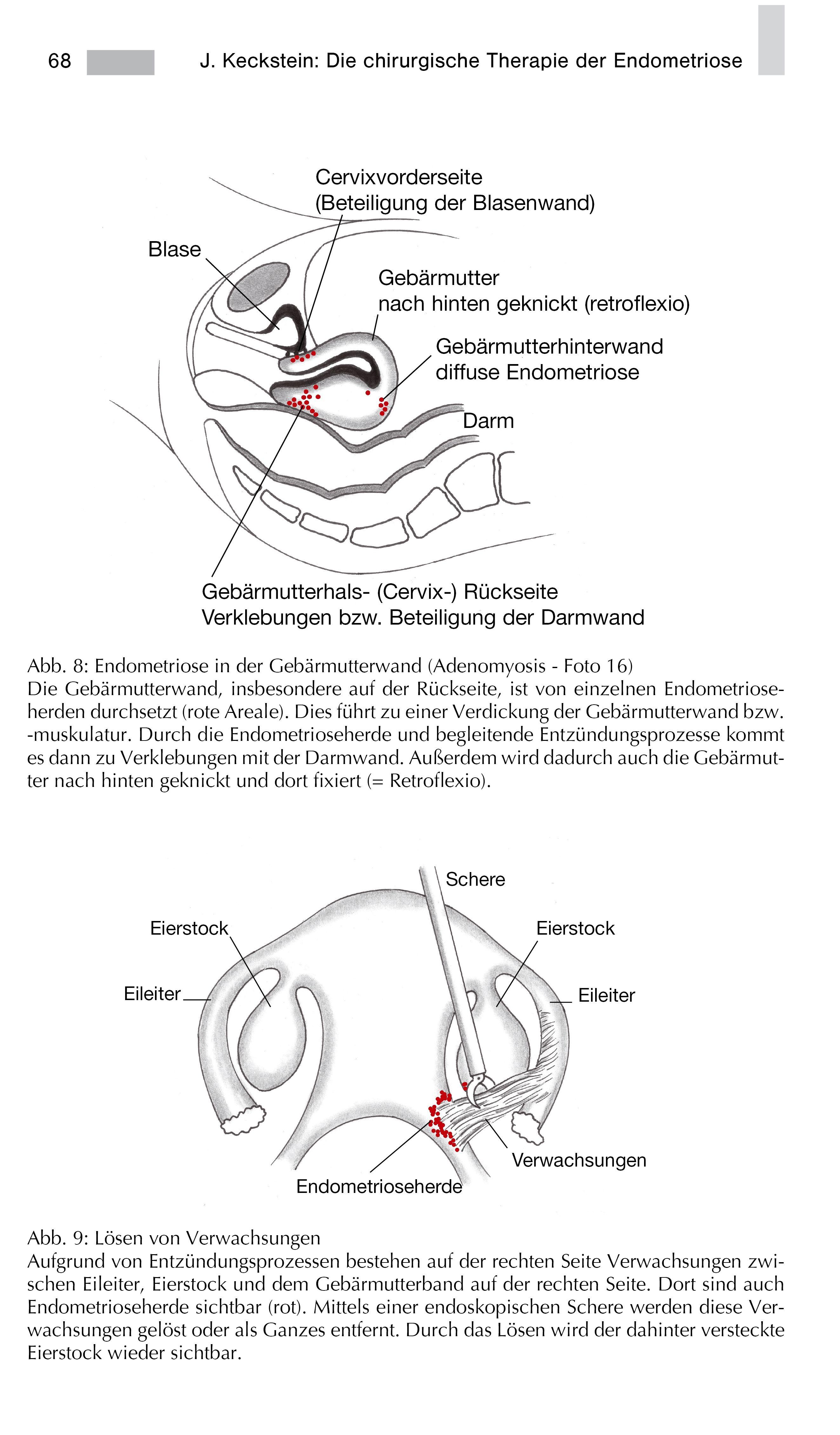 Hinten geknickte gebärmutter nach Nach hinten