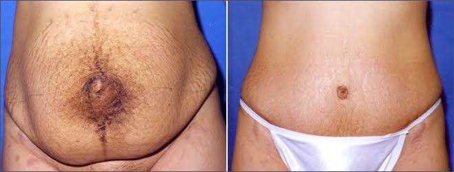 Tummy tuck surgery also known as abdominoplasty removes for How long does it take to get a tattoo removed