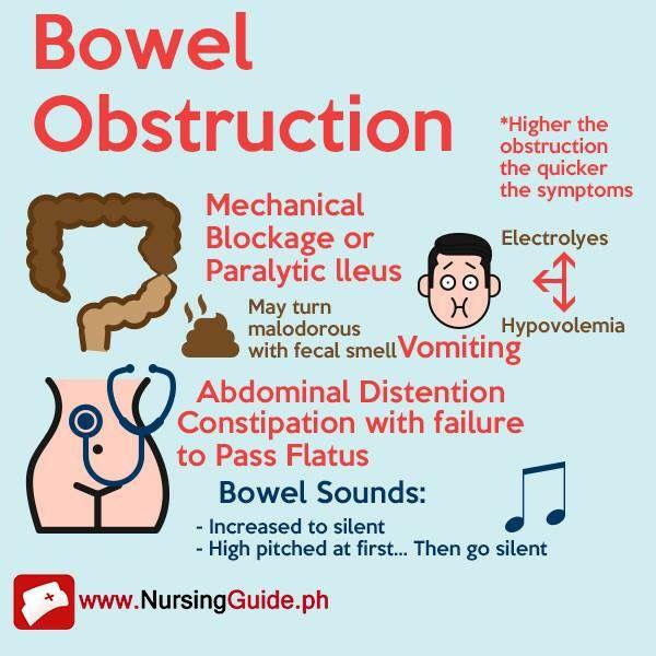 Bowel Obstruction | Bowel obstruction, Top nursing schools ...