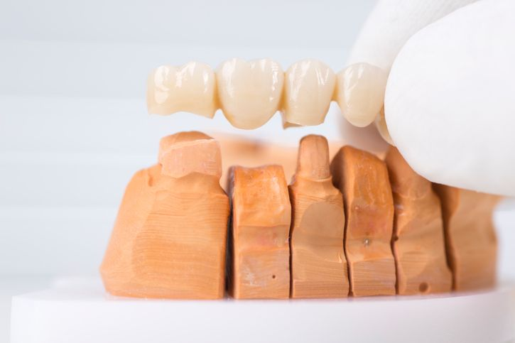 Dental bridge costs dental bridge cost dental dental