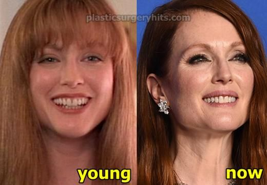Kate Middleton Before And After | Celebrity Botox Before ...