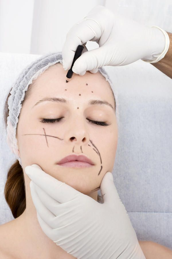 Facial Cosmetic Surgery for Women