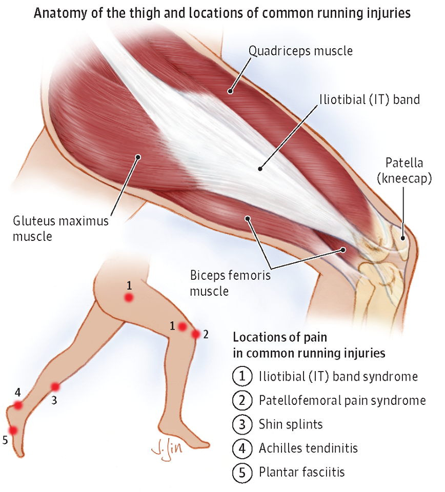 Running Injuries From Journal Of The American Medical Association