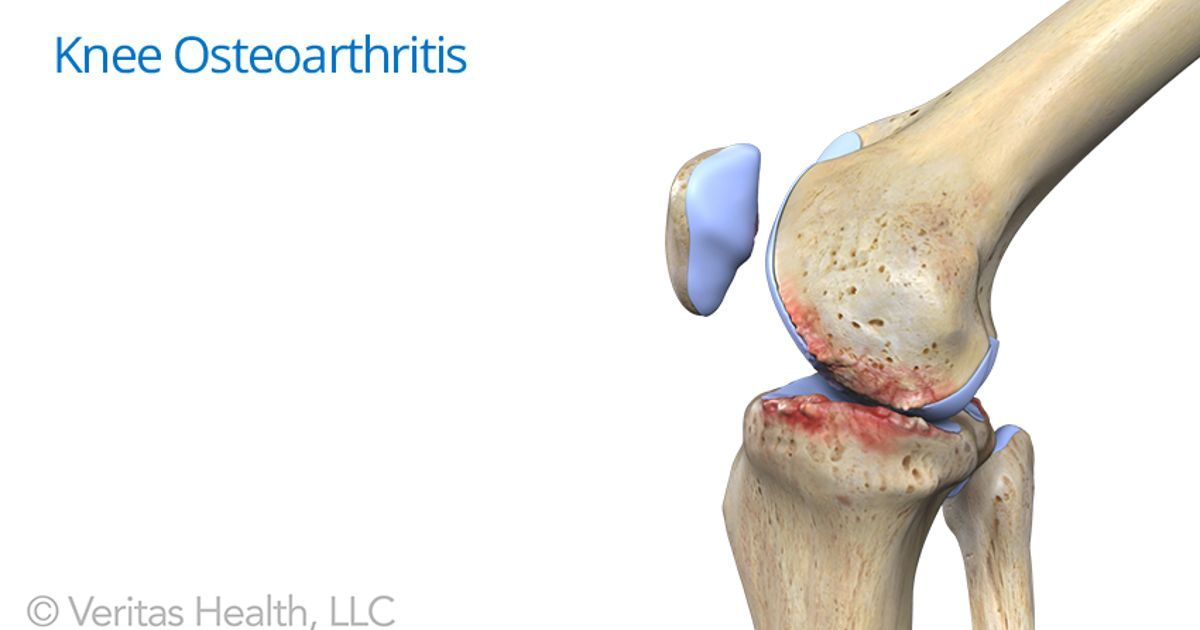 c0b3e0f6c2 Knee crepitus is the medical term for crunching or popping in the knee  joint. Learn about knee crepitus pain symptoms and treatments in this  article.