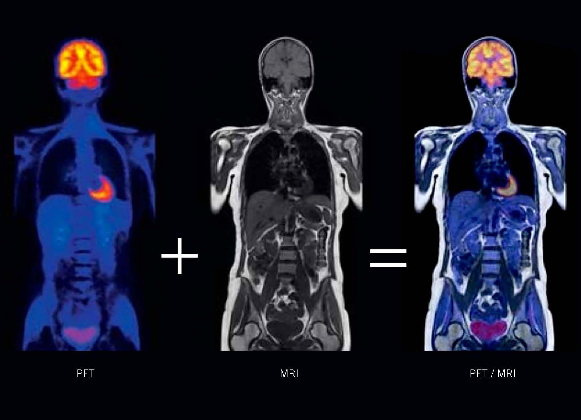 PET/ MRI Nuclear Medicine