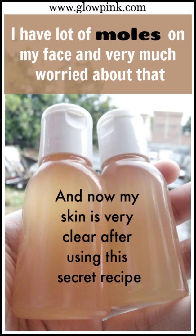 Natural Remedies To Remove Moles