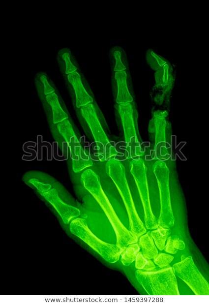 Manus X Ray Anatomy Radiology Radiographic Stock Photo Edit Now 1459397288