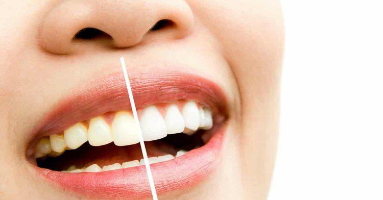 Os Poderes Do Carvao Ativado Para Clarear Os Dentes Carvao Ativado