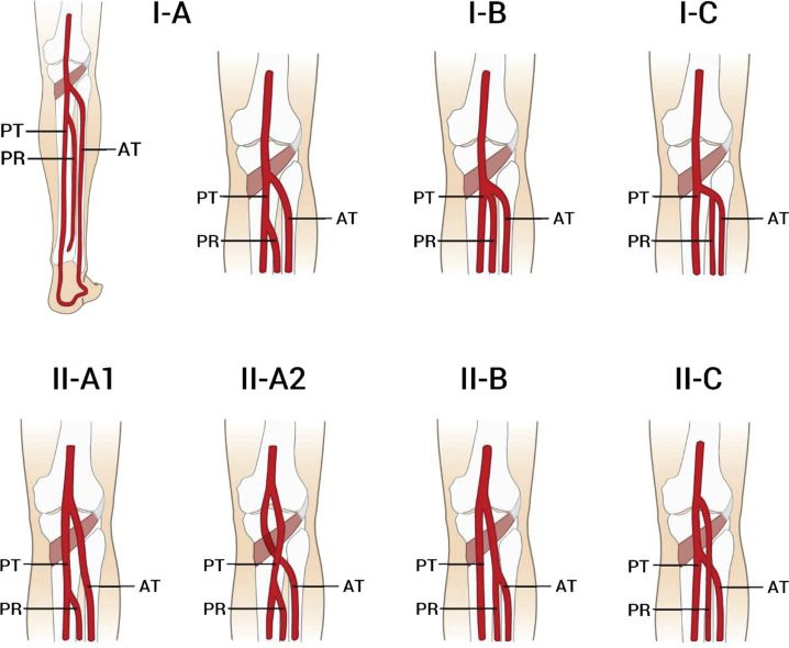 Type I and type II variations of the popliteal artery (PA) | Medicin ...