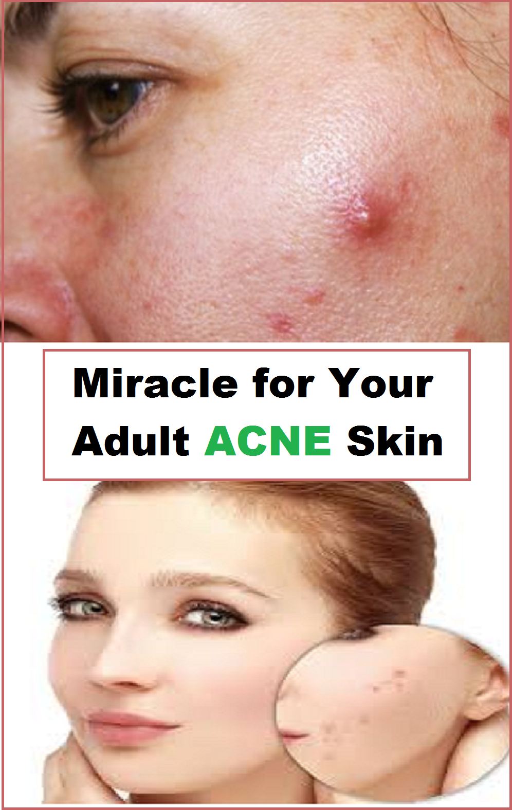Miracle For Your Adult Acne Skin Acne Rosacea Acne Skin Pimples Skin Breaking
