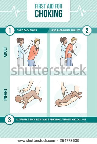 First Aid Procedure For Choking And Heimlich Maneuver For Adults And