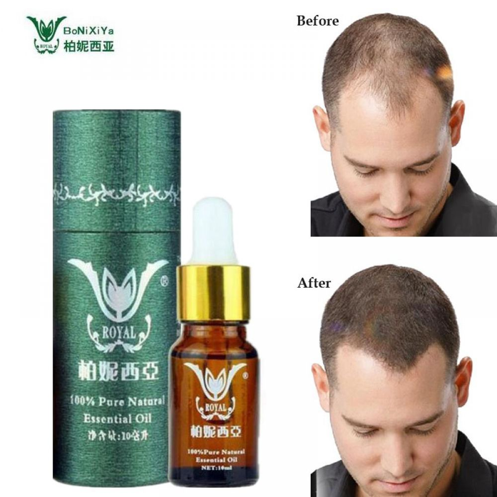Hair Growth Essence Professional Salon Hairstyles Keratin