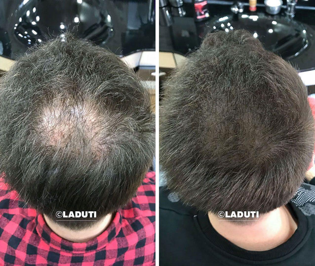 Haarwuchsmittel Laduti Mittel Gegen Haarausfall Haarausfall Haare
