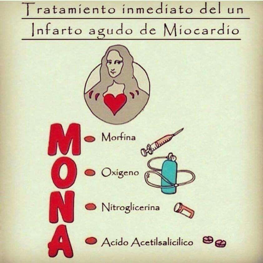 Infarto de miocardio | medicina | Pinterest | Infarto de miocardio ...