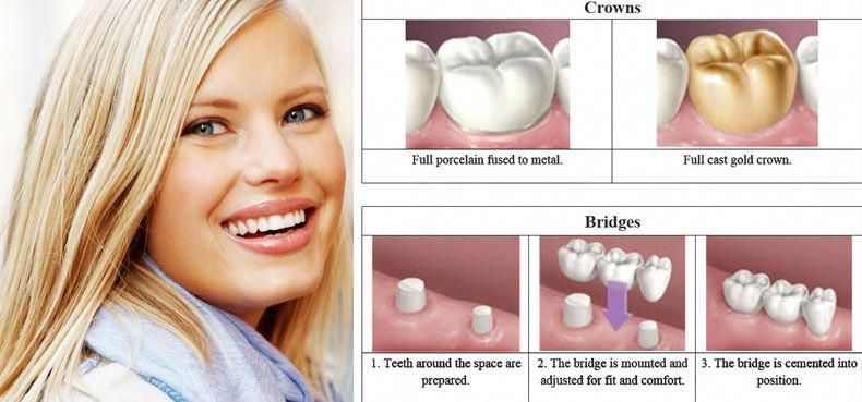 Absorbing Dental Crowns Before And After Root Canal