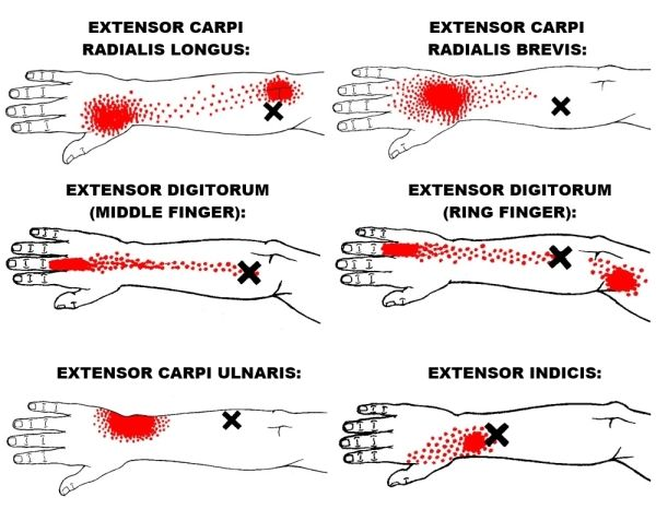 13+ The Definitive Guide to Wrist Extensors Anatomy, Exercises & Rehab