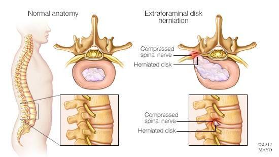 Hernia de disc lombară | Move&Flex