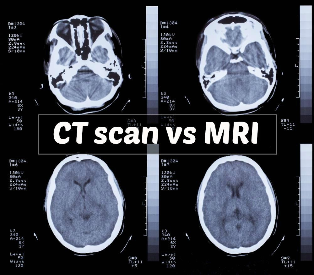 This MRI image shows the brain of a patient suffering from