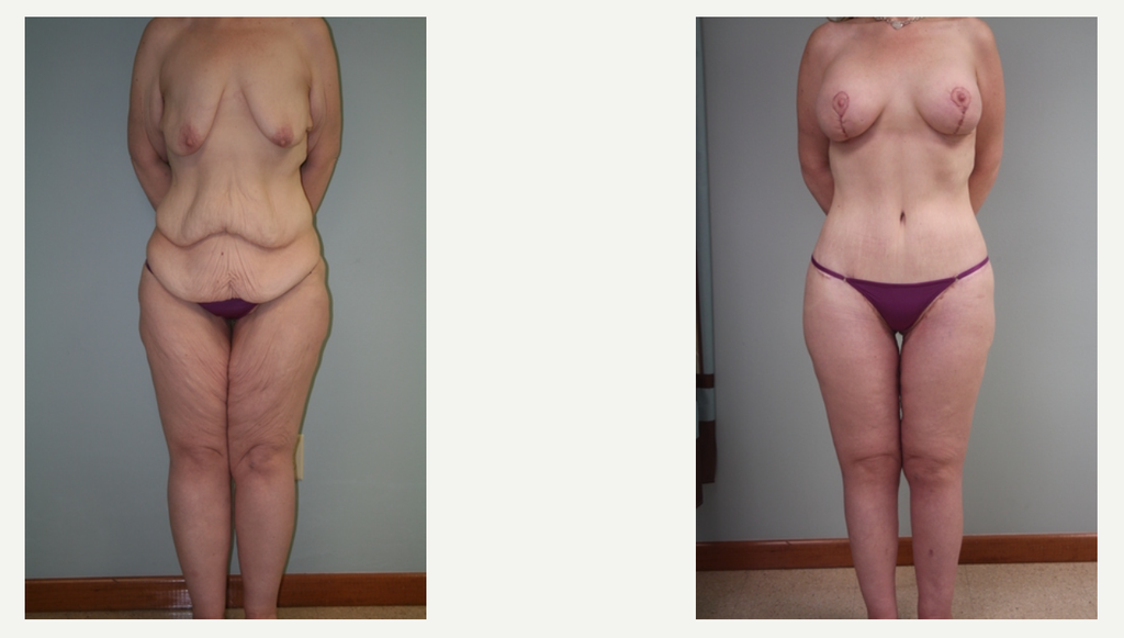 Why Get Plastic Surgery After Weight Loss Plastic Surgery After