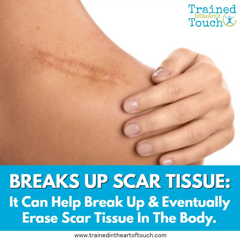 Cupping Therapy Scar Tissue: Breaks Up Scar Tissue: It Can Help Break Up & Eventually